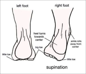 foot supination and how it affects sciatica & low back pain